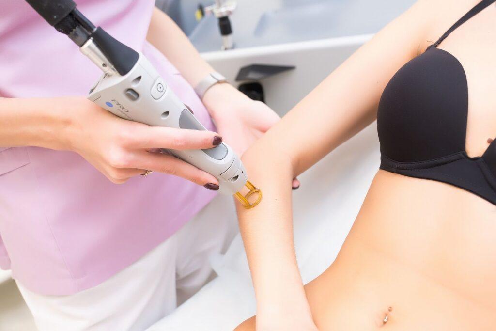 Лазерная эпиляция рук: преимущества, особенности процедуры, противопоказания